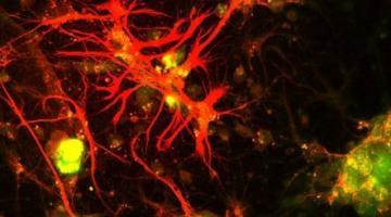 Inside Cancer: How Genes Influence Cancer Development