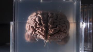 Doctors Fighting Brain Cancer by Growing Mini-Brains | Digital Trends