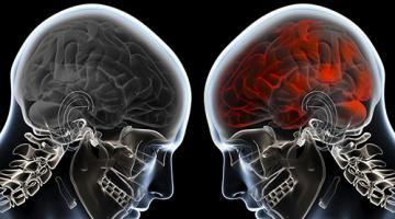 Commotion cérébrale: prévention, détection et gestion dans mon milieu