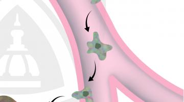 Understanding Cancer Metastasis